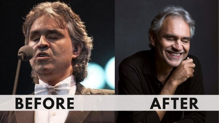 Andrea Bocelli Weight Loss before after