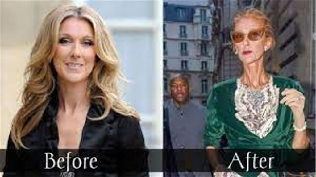 Celine Dion Weight Loss before after